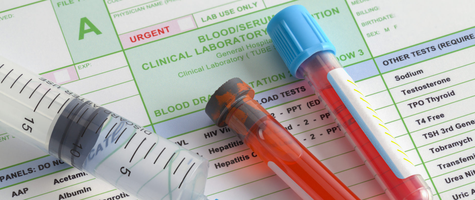 Blood Vials on lab results